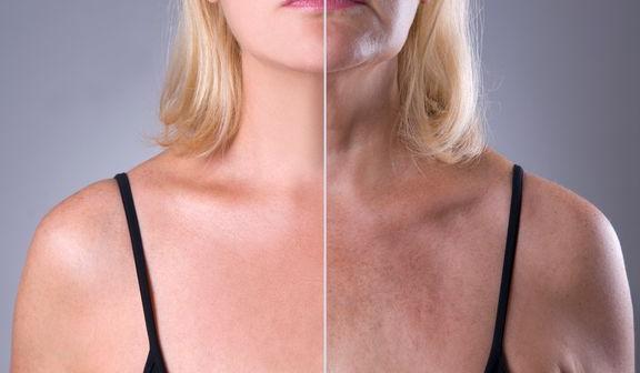 Beskyt huden mod solen